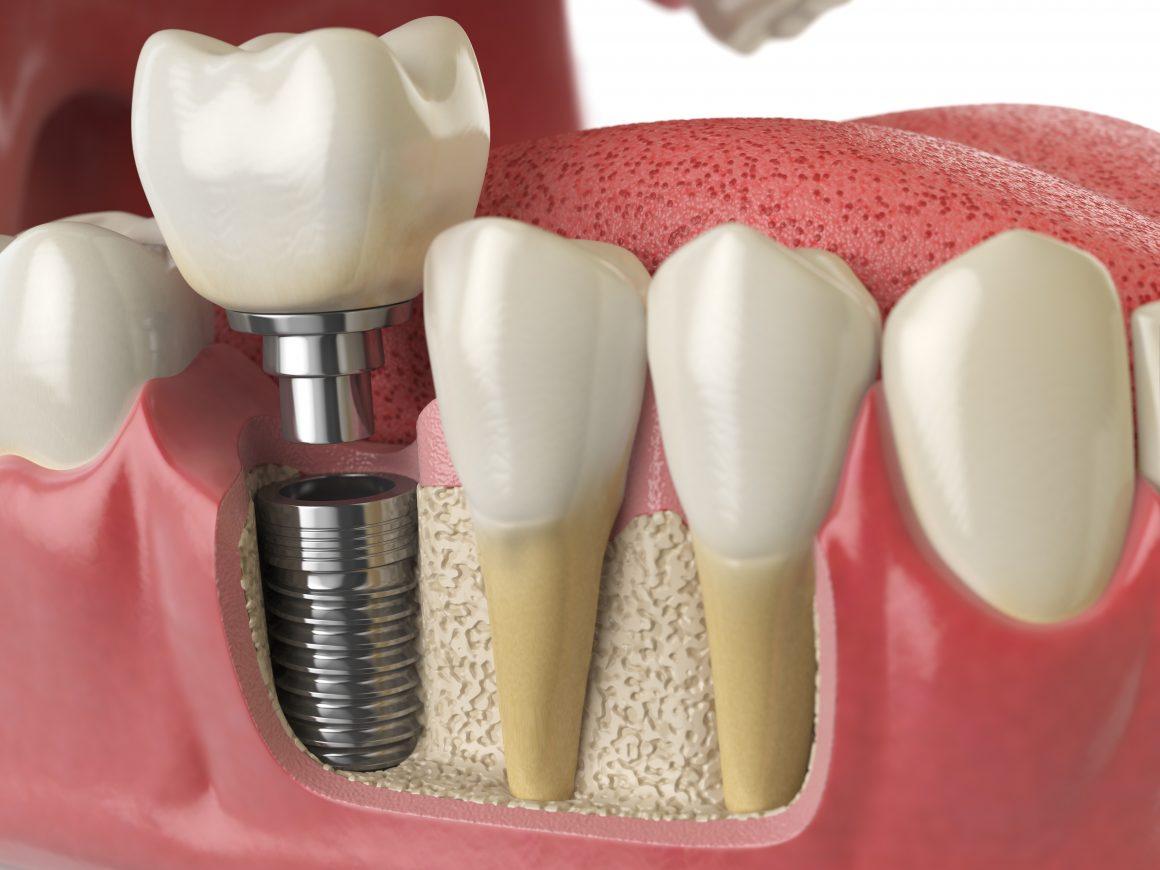London Dental Implants